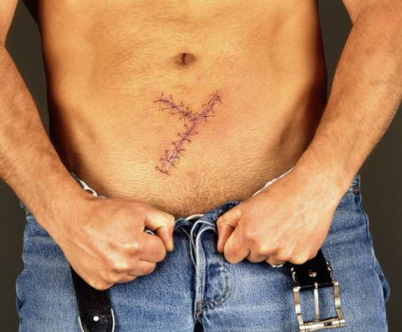 dehiscence wound first aid guidelines